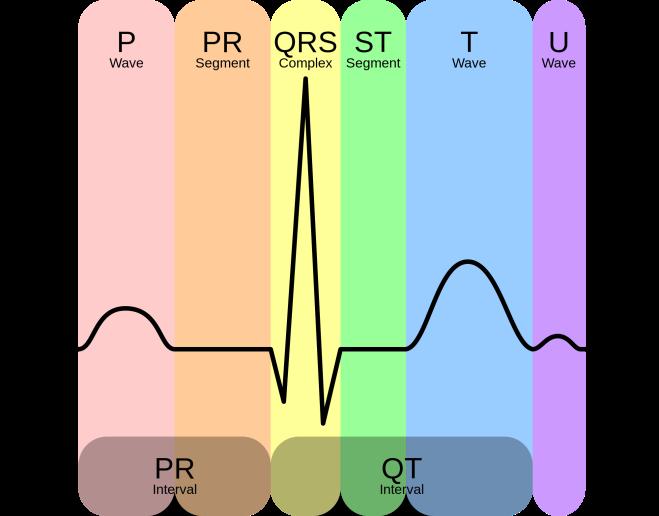 EKG_Complex_en.svg